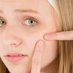 درمان سریع جوش های صورت