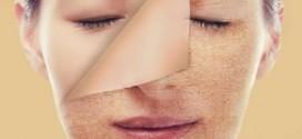 چگونه خشکی پوست را درمان کنیم