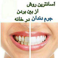 اسانترین روش جرم گیری دندان
