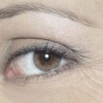 از بین بردن چروک های زیر چشم