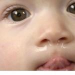 درمان خانگی سرما خوردگی در نوزادان