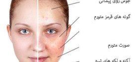 خوراکی های مضر در سلامت پوست صورت