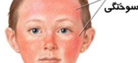 درمان آفتاب سوختگی پوست در تابستان