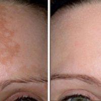 درمان لکه های قهوه ای صورت در خانه
