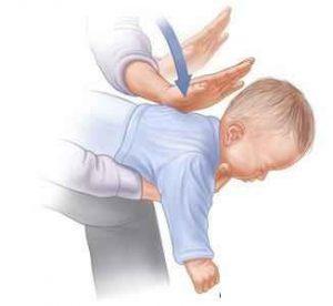 نحوه ی خارج کردن اشیا از گلوی کودکان