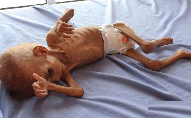 کودکان جنگ زده یمنی