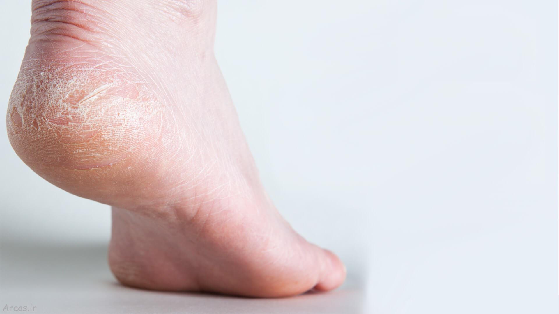 نرمی کف پا
